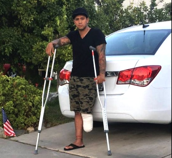 This year Get Up 8 will raise money to help Jessi Lopez get a prosthetic leg, after he lost his leg following a motorcycle accident in June.